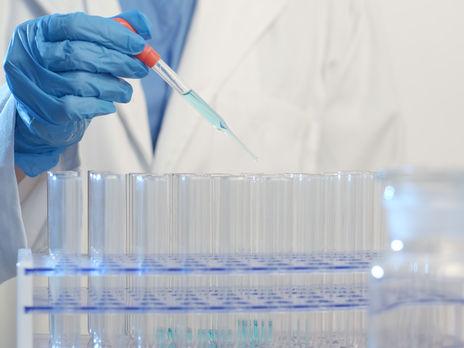 У умершего в Днепре мужчины был не коронавирус, а пневмония - ОГА