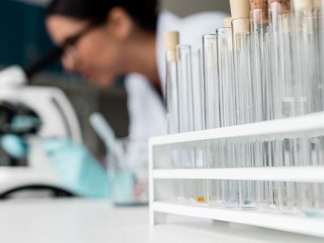 В Украине есть около 200 тыс. ПЦР-тестов на коронавирус – Минздрав