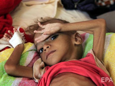 Коронавирус может вдвое увеличить количество людей, страдающих от голода — ООН
