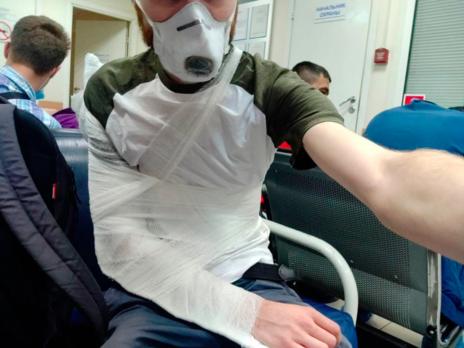Медики підтвердили перелом руки