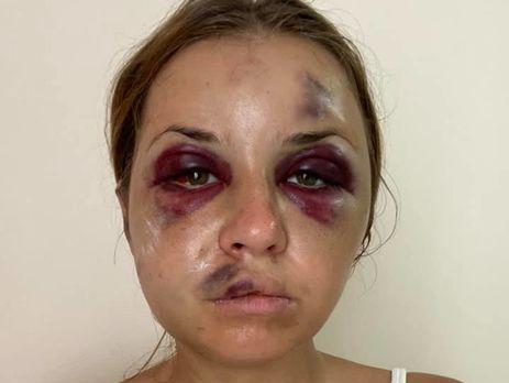 У Луговой после нападения многочисленные травмы лица