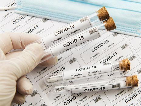 Показники проведених лабораторних тестів на COVID-19 відповідають нормам у всіх областях