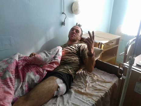 Под Мариуполем серьезное обострение— усил АТО множество раненых