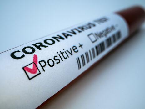 По данным ВОЗ, сейчас на планете свыше 117 млн подтвержденных случаев заражения коронавирусом