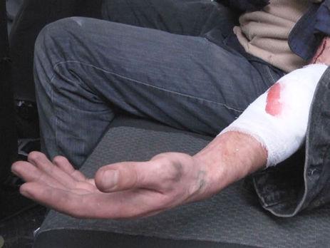 ВОдессе мужчина застрял вплатежном терминале, пытаясь его обокрасть