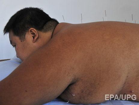Ученые узнали причину возвращения избыточного веса после похудения