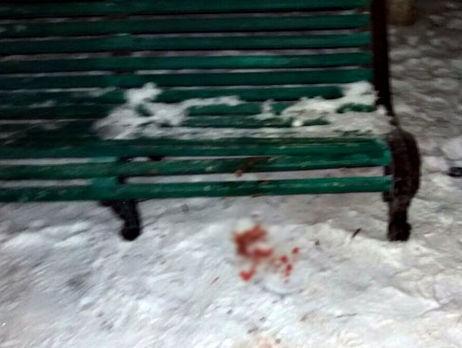 В итоге ссоры сгражданским вДонбассе умер один военный