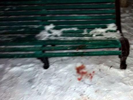 Нацполиция: ВДонецкой области словили военного, который убил сослуживца