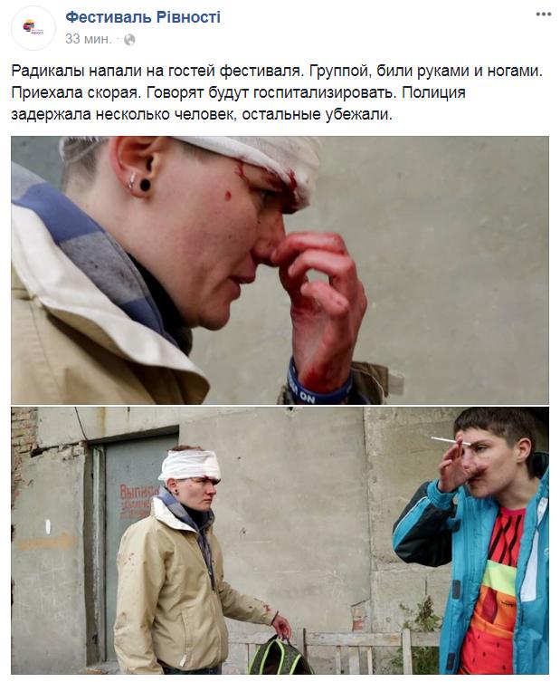 ВЗапорожье избили уполномченных ЛГБТ-сообщества: появились фото